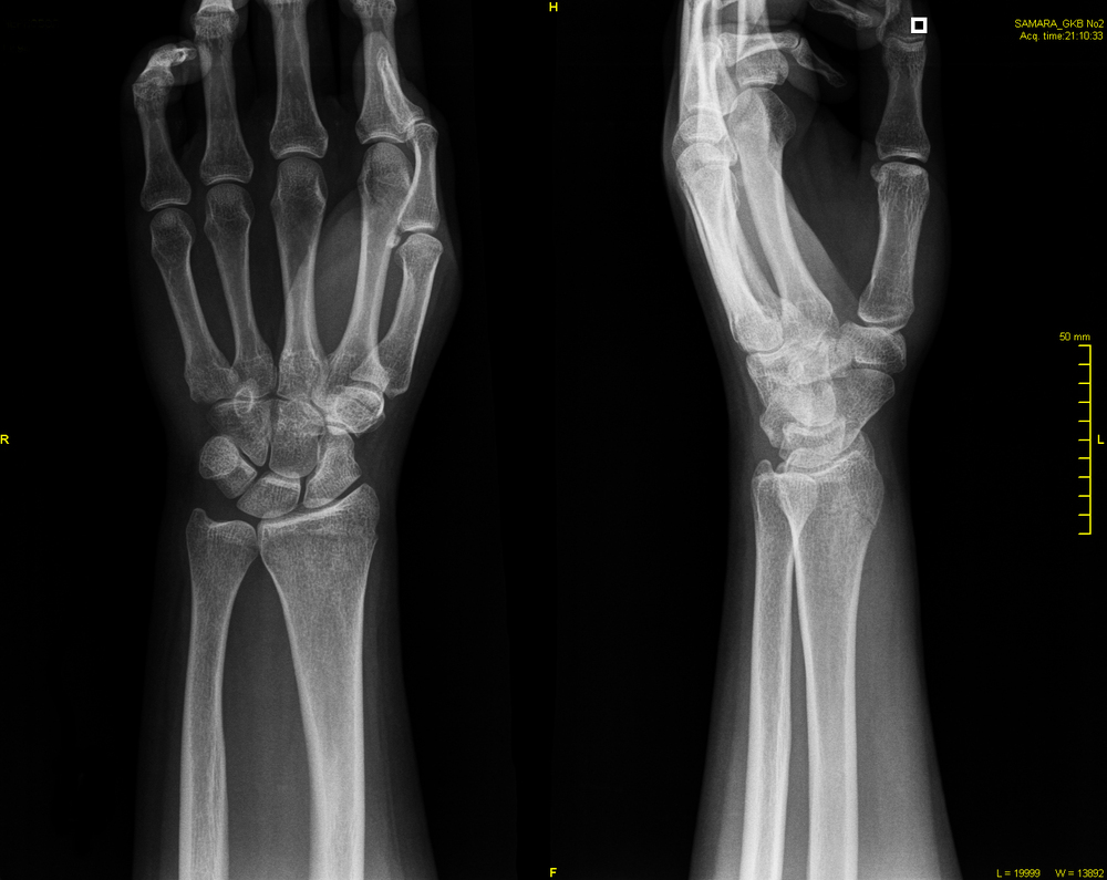 руки трещина фото кость лучевая