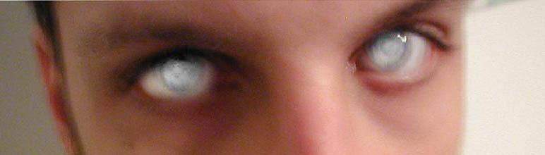 фото глаза слепого человека