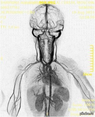 Как это работает Великолепный МРТ-снимок сосудов верхней половины тела человека. Так получается крайне редко