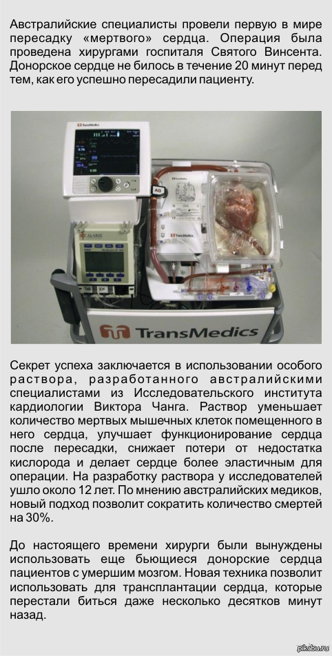 Медики впервые пересадили мертвое сердце