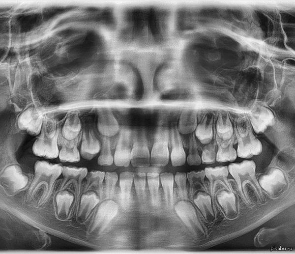 Процесс смены зубов у человека. Работаю сис. админом в клинике.  Наткнулся на такой снимок.