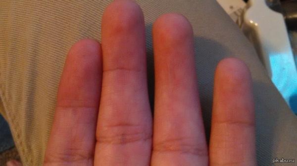 """""""Безымянный палец на левой руке имеет лишь одну складку"""""""