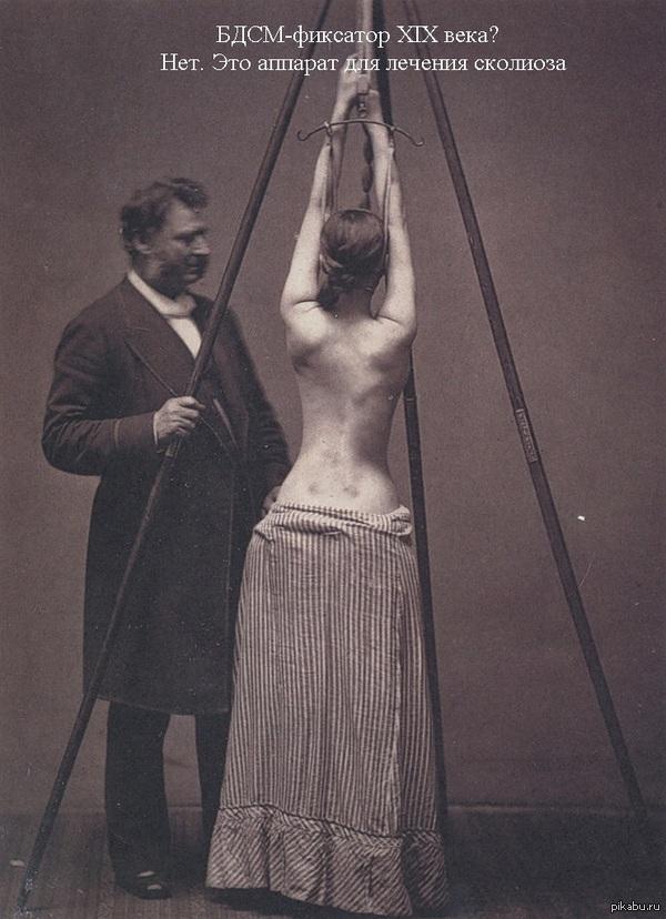 Аппарат для лечения сколиоза 1877 год Врачу определенно нравится лечить пациентку
