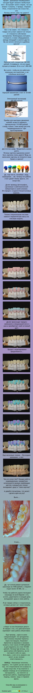 Продолжаем про стоматологию...5 ( за что платим деньги?!)