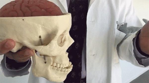 """""""Сотрясение мозга"""" Доктор Кристофер Гизе из Калифорнийского университета демонстрирует , что мозг состоит из мягких тканей и плавает в внутри черепа"""