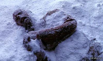 зима не роскошь, а средство обморожения. школьник отморожен