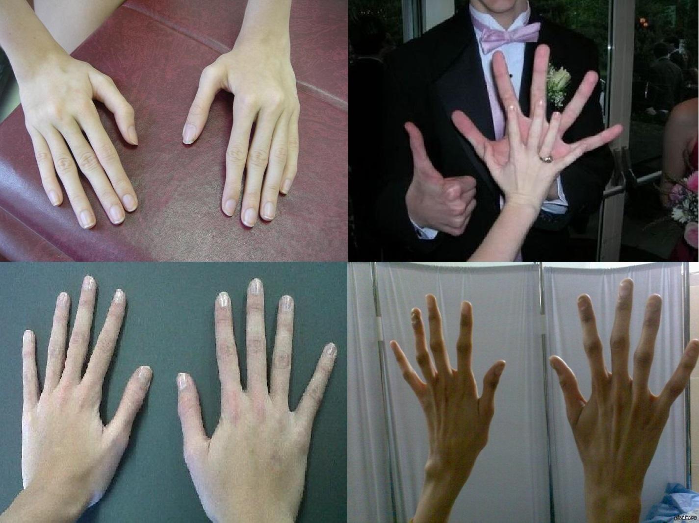 Что делать что похудели пальцы рук