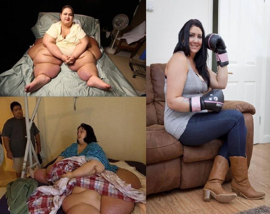 Самая Толстая Женщина Мира Похудела. Самая толстая в мире женщина, похудевшая на 323 кг, скончалась