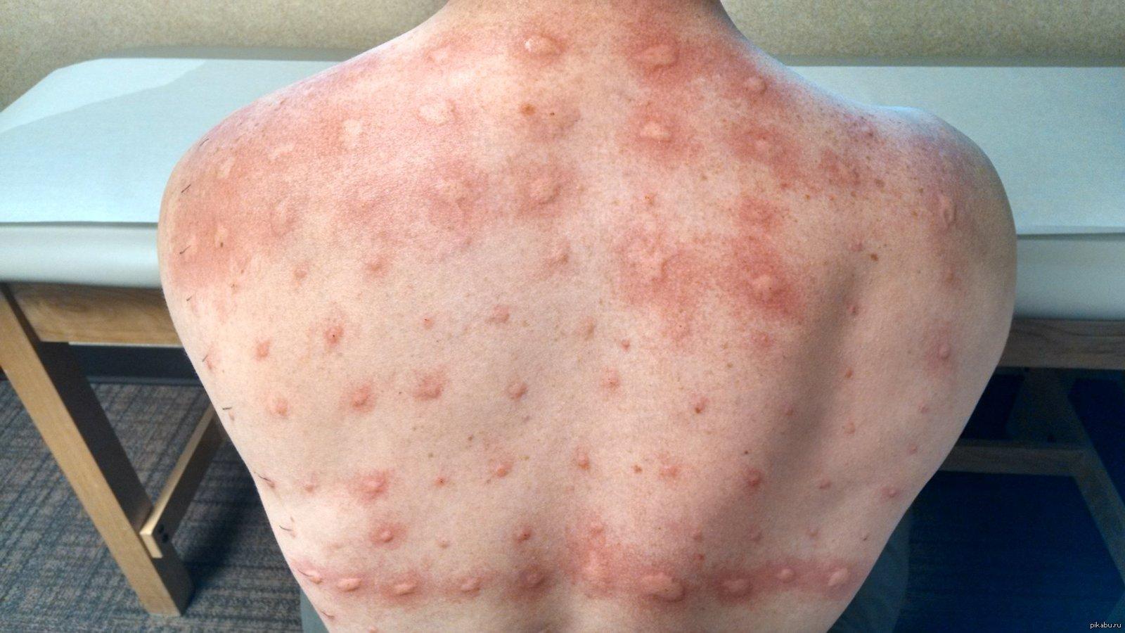 аллергия на воду фото